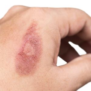 Pielis sitio web_RESURLASER SCAR REPAIR Cicatrices por quemaduras