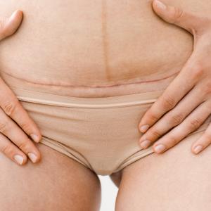 Pielis sitio web_RESURLASER SCAR REPAIR Cicatrices post abdominoplastia