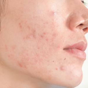 Pielis sitio web_RESURLASER SCAR REPAIR Cicatriz por acné