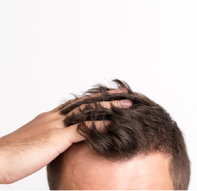 RESURBODY HAIR INTENSE EPDM-01