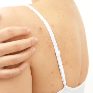Secuelas del acné en cuerpo